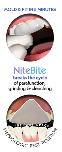 Mold and Fit in 5 Minutes. NiteBite breaks the cycle of parafunction, grinding and clenching, creating the freeway space for psysiologic rest position